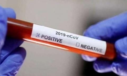 Santa Catarina é o 5º estado com mais infectados por Covid-19 no país